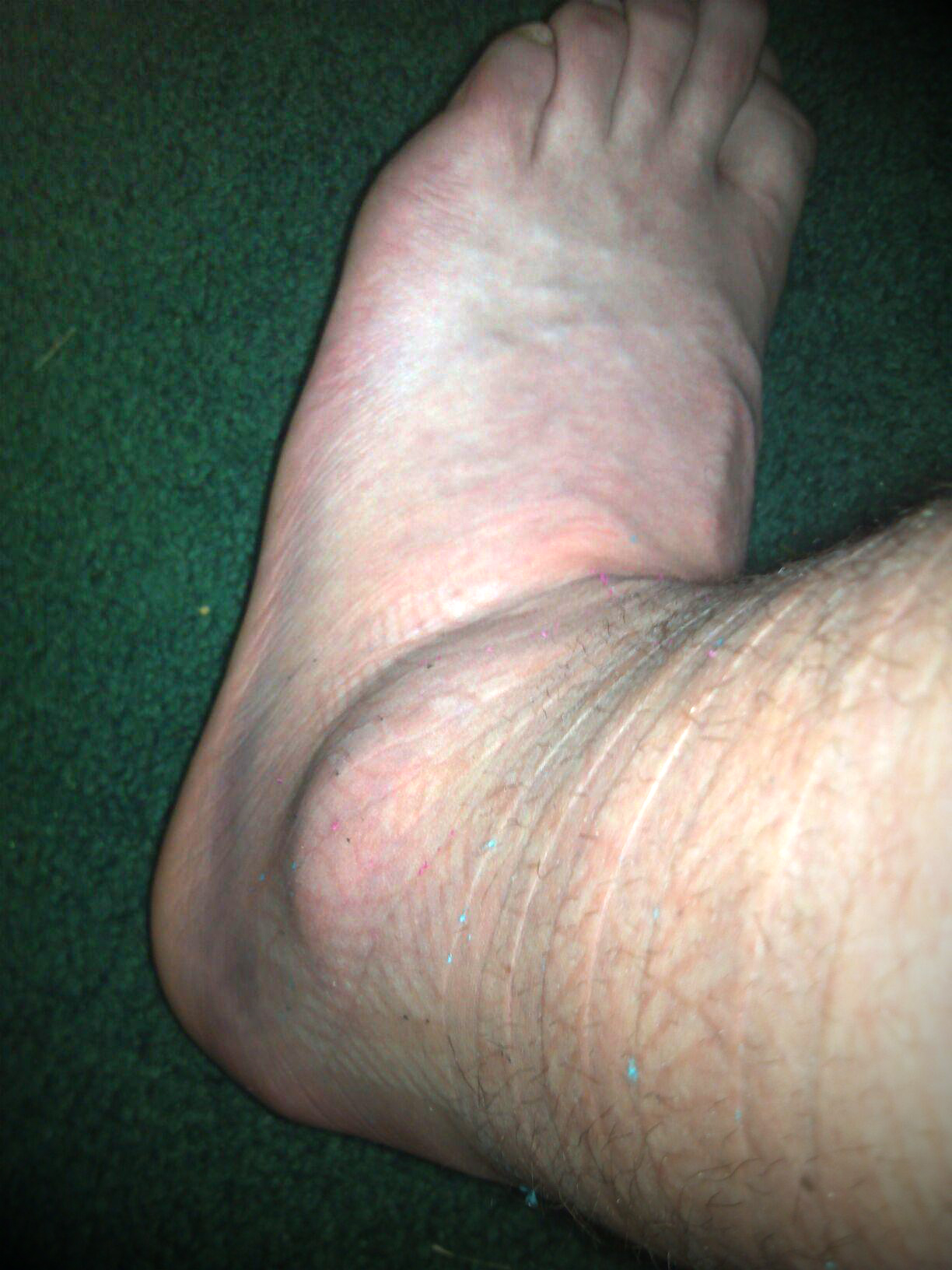 Ankle_48_hours_after_1.jpg
